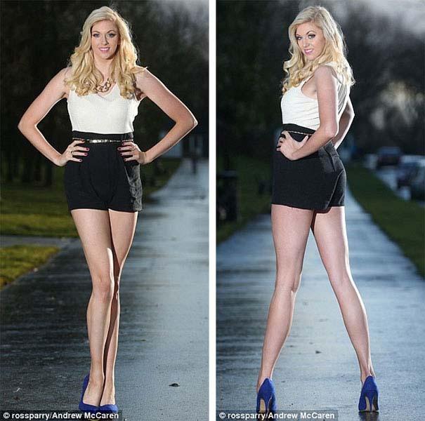 Η γυναίκα με τα πόδια μήκους 1,19 μέτρων (4)