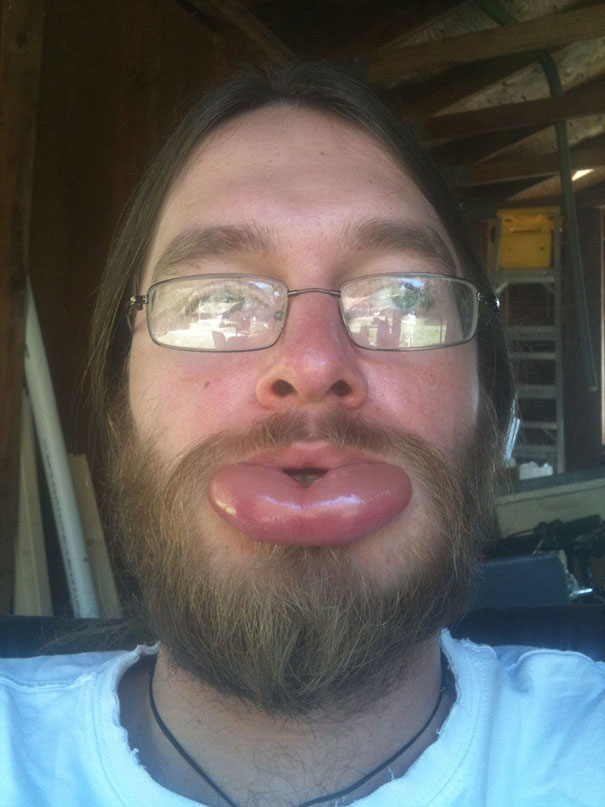 Τσίμπημα μέλισσας στο κάτω χείλος | Φωτογραφία της ημέρας