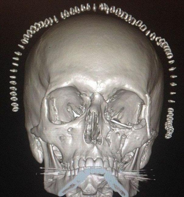 3D εκτύπωση κρανίου για θύμα τροχαίου με μοτοσυκλέτα (4)