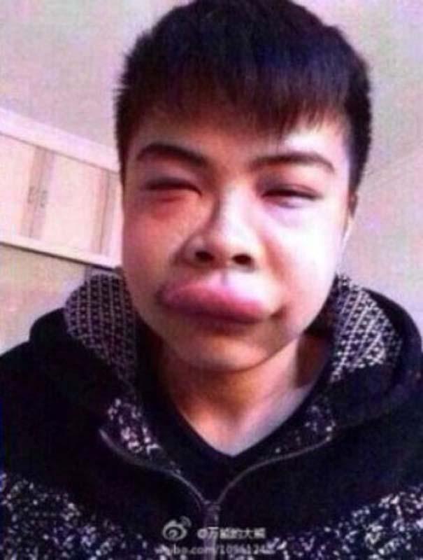 Αυτός ο τύπος ανακάλυψε γιατί είναι κακή ιδέα να φιλήσεις μια χελώνα (5)
