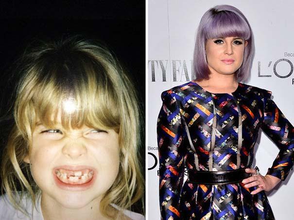 Διάσημοι σε παιδική ηλικία και τώρα (9)