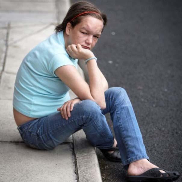 Σοκαριστική μεταμόρφωση 27χρονης από ναρκωτικά (6)