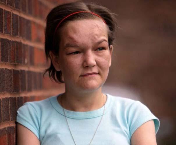 Σοκαριστική μεταμόρφωση 27χρονης από ναρκωτικά (7)