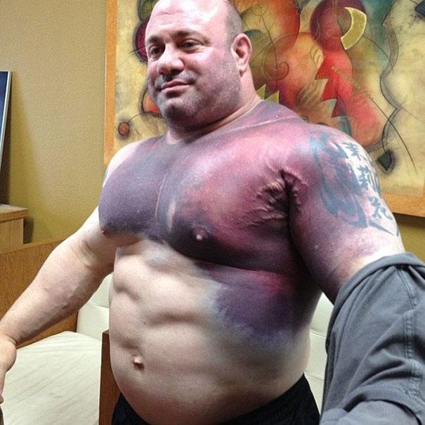 Το σοκαριστικό αποτέλεσμα μιας προσπάθειας για Παγκόσμιο Ρεκόρ στο Bench Press (Πιέσεις Στήθους με μπάρα)