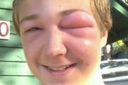 Τσιμπήματα μέλισσας στο πρόσωπο (3)