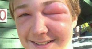 Οι συνέπειες του τσιμπήματος μέλισσας στο πρόσωπο