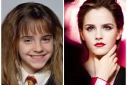Διάσημα παιδιά που μεταμορφώθηκαν θεαματικά μέσα σε λίγα χρόνια