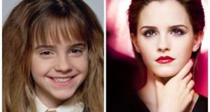 Διάσημα παιδιά – ηθοποιοί που μεταμορφώθηκαν θεαματικά μέσα σε λίγα χρόνια