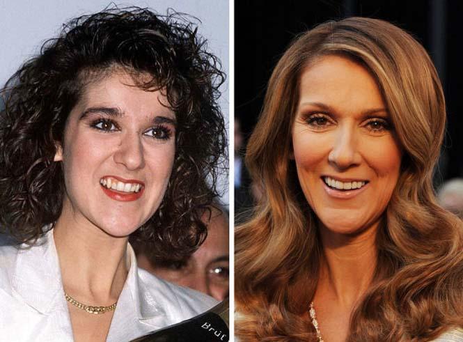 Διάσημοι που έφτιαξαν τα δόντια τους (1)