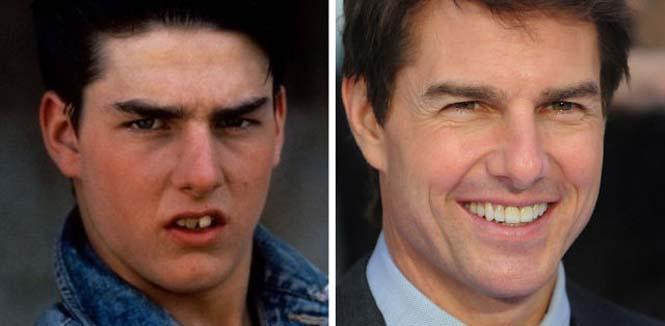 Διάσημοι που έφτιαξαν τα δόντια τους (9)