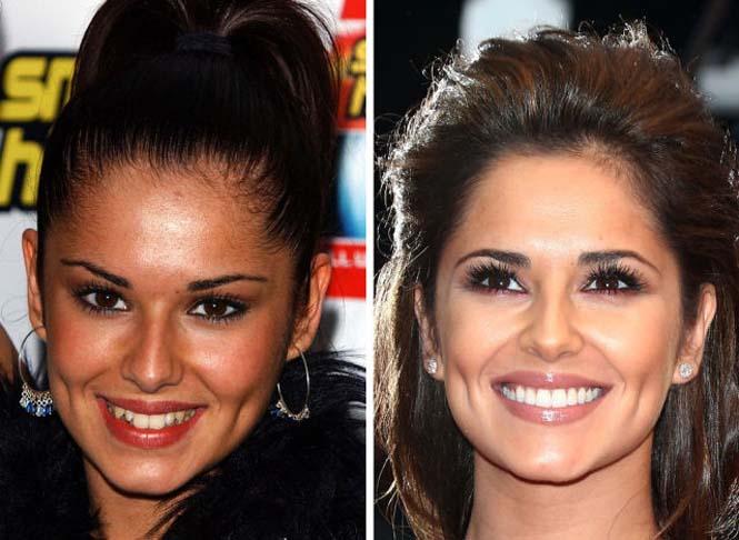 Διάσημοι που έφτιαξαν τα δόντια τους (8)