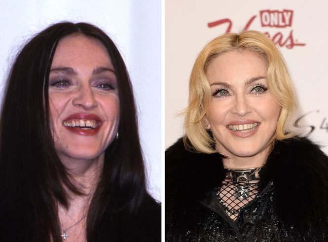 Διάσημοι που έφτιαξαν τα δόντια τους (16)