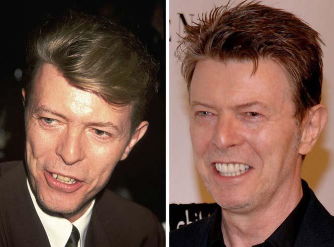 Διάσημοι που έφτιαξαν τα δόντια τους (14)