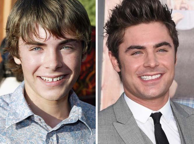 Διάσημοι που έφτιαξαν τα δόντια τους (2)