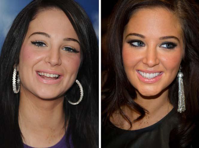 Διάσημοι που έφτιαξαν τα δόντια τους (15)