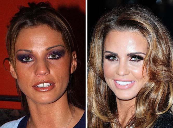 Διάσημοι που έφτιαξαν τα δόντια τους (20)