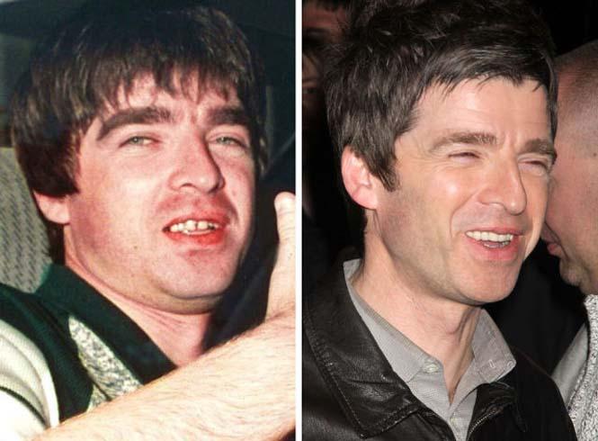 Διάσημοι που έφτιαξαν τα δόντια τους (4)