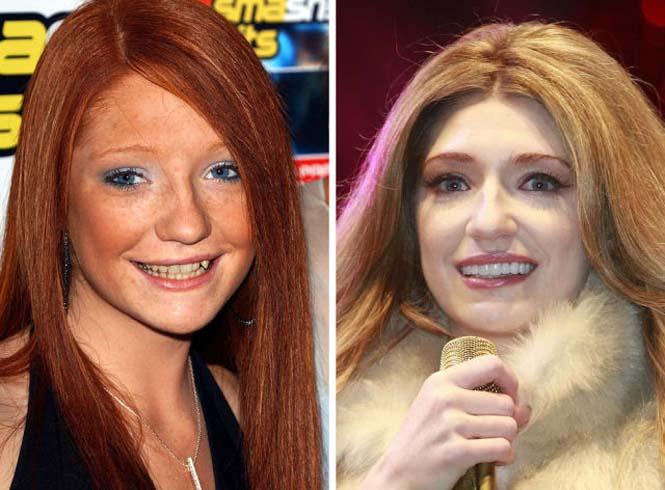 Διάσημοι που έφτιαξαν τα δόντια τους (11)