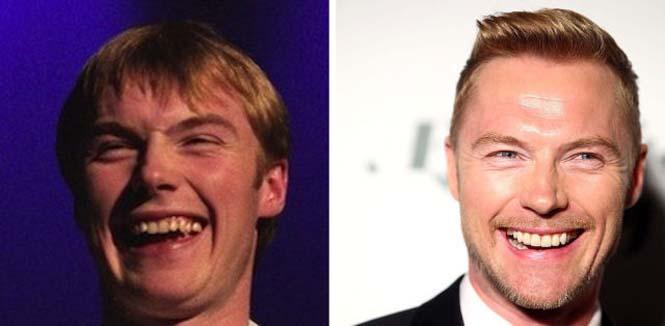Διάσημοι που έφτιαξαν τα δόντια τους (22)