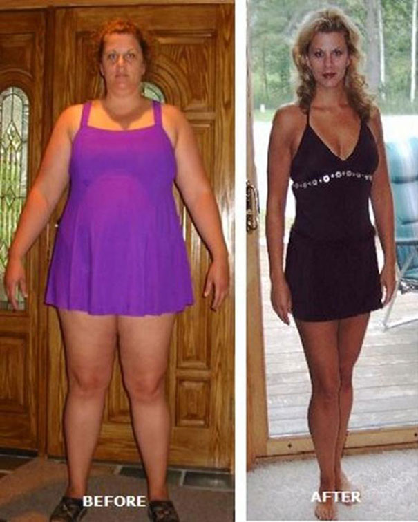 Εκπληκτικές περιπτώσεις γυναικών που άλλαξαν το σώμα τους (6)