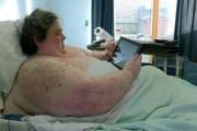 Ακτινογραφίες ανθρώπου 445 κιλών (1)