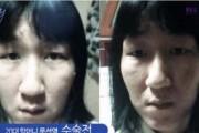 Κορεάτισσα άλλαξε εντελώς το πρόσωπο της (1)