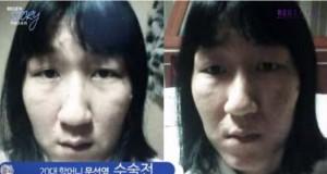 29χρονη Κορεάτισσα άλλαξε εντελώς το πρόσωπο της