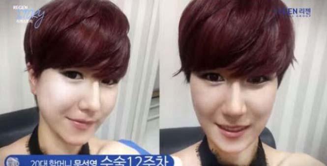 Κορεάτισσα άλλαξε εντελώς το πρόσωπο της (2)