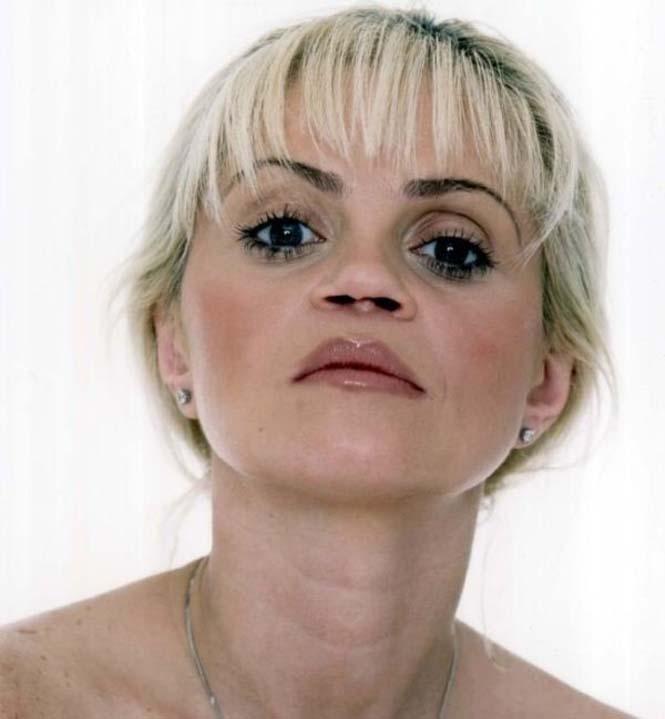 Γνωστή ηθοποιός δείχνει τις τραγικές συνέπειες της κοκαΐνης στη μύτη της (3)