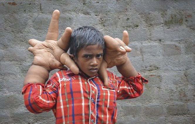 Αγόρι με τεράστια χέρια (1)