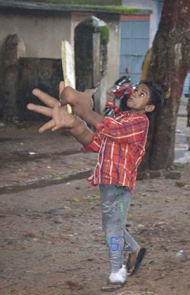 Αγόρι με τεράστια χέρια (7)