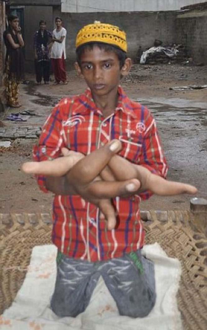 Αγόρι με τεράστια χέρια (12)