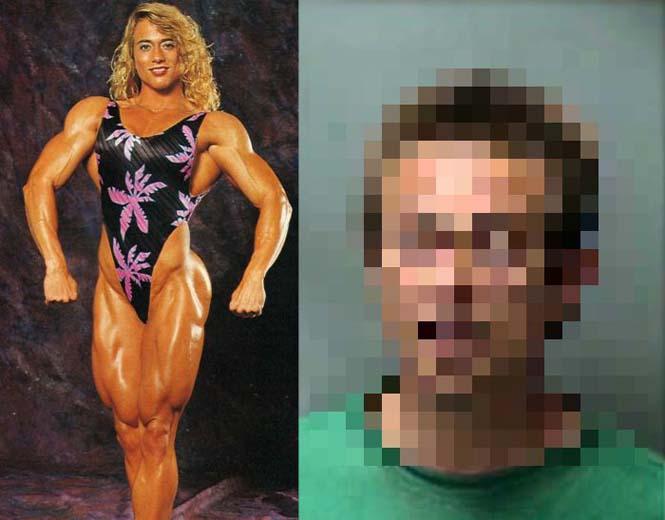 Δείτε πως έγινε μια γυναίκα μετά από 20 χρόνια χρήσης στεροειδών (1)