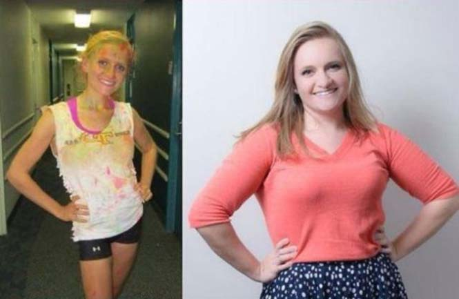 Πριν και μετά την ανορεξία (1)