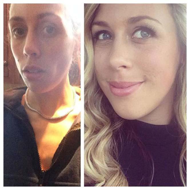Πριν και μετά την ανορεξία (5)