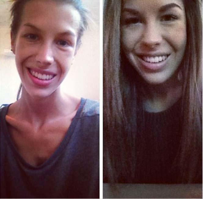 Πριν και μετά την ανορεξία (6)