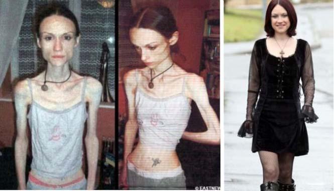 Πριν και μετά την ανορεξία (11)