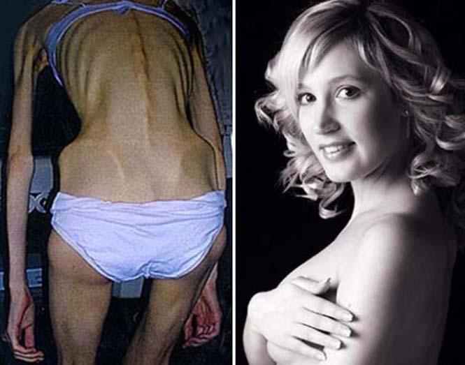 Πριν και μετά την ανορεξία (12)