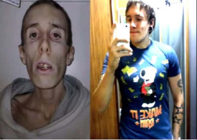 Πριν και μετά την ανορεξία (14)