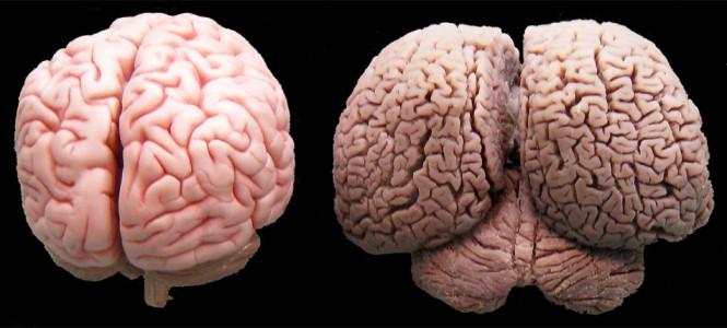 Ανθρώπινος εγκέφαλος vs εγκέφαλος δελφινιού   Φωτογραφία της ημέρας