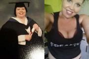 Γυναίκα αποκαλύπτει το σώμα της πριν και μετά την επέμβαση αφαίρεσης περίσσιου δέρματος (1)