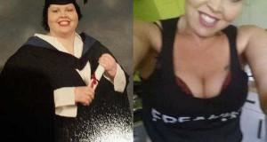 Γυναίκα αποκαλύπτει το σώμα της πριν και μετά την επέμβαση αφαίρεσης περίσσιου δέρματος