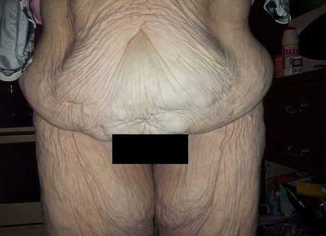 Γυναίκα αποκαλύπτει το σώμα της πριν και μετά την επέμβαση αφαίρεσης περίσσιου δέρματος (2)