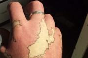 Άνδρας μετέτρεψε το εκ γενετής σημάδι του σε χάρτη ενός φανταστικού κόσμου