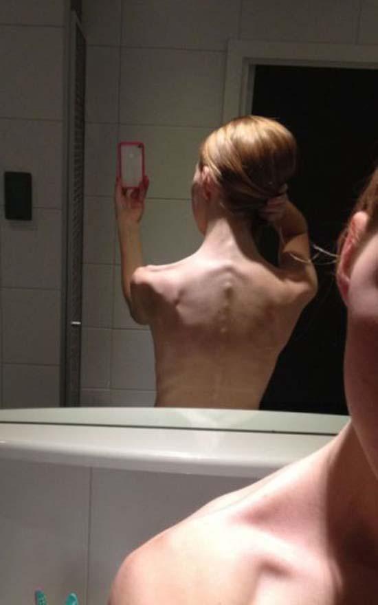 Ανορεξικό κορίτσι μεταμορφώθηκε χάρη στην γυμναστική (4)