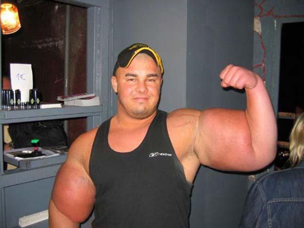 25 bodybuilders που μάλλον το παράκαναν... λιγάκι! (6)