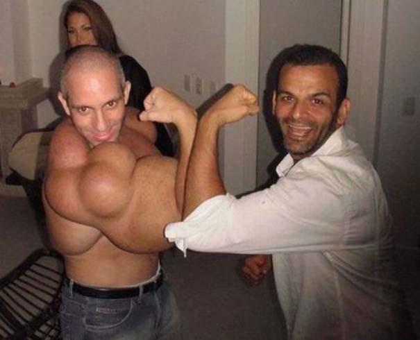 25 bodybuilders που μάλλον το παράκαναν... λιγάκι! (2)