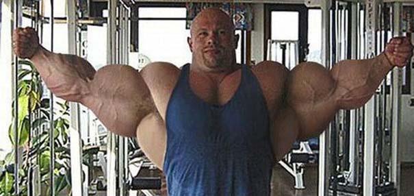 25 bodybuilders που μάλλον το παράκαναν... λιγάκι! (16)