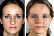 Φωτογραφίες πριν και μετά την πλαστική δείχνουν πως η μύτη μπορεί να αλλάξει τελείως ένα πρόσωπο (6)