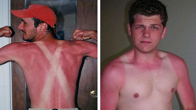 11 άνθρωποι που... ένιωσαν το κάψιμο